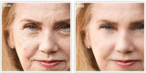 Anti Aging Skin Care Before & After Image