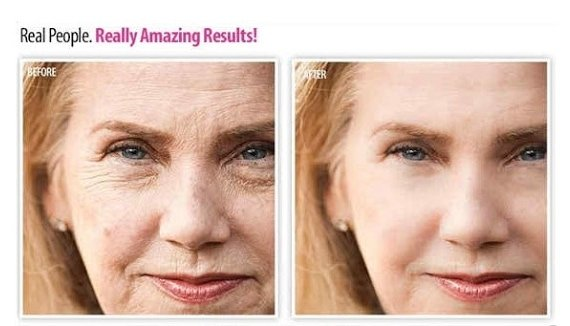 Anti Ageing Before & After Image