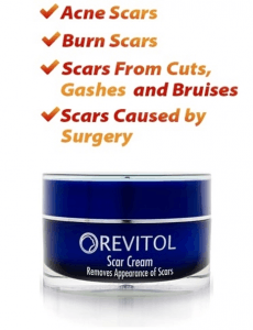Revitol Scar Removal Cream Image