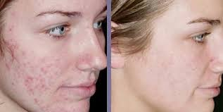 Revitol Scar Cream Remover Before & After Image