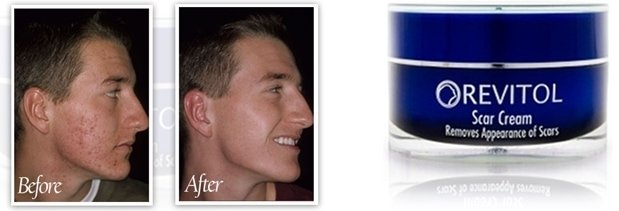 Tub Of Revitol Scar Cream Remover With Before & After Image
