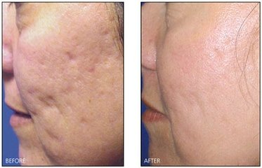Revitol Scar Cream For All Skins A Scar Removal Cream That Works