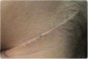 Scar Removal Cream Image