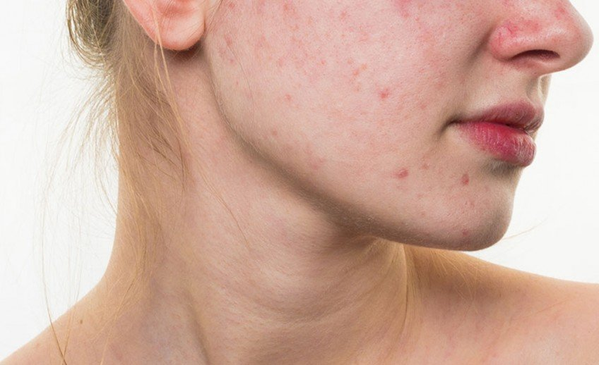 Prevention And Causes Of Acne