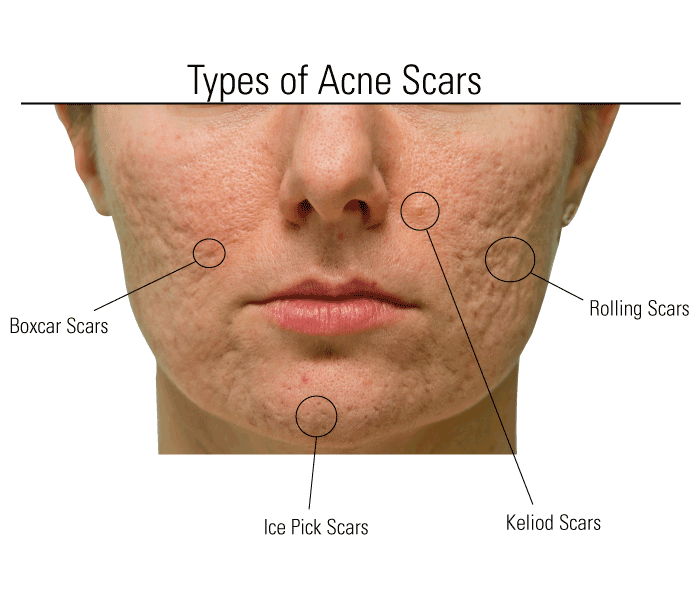 Best Acne Scar Removal Cream Revitol Creams Use The Best