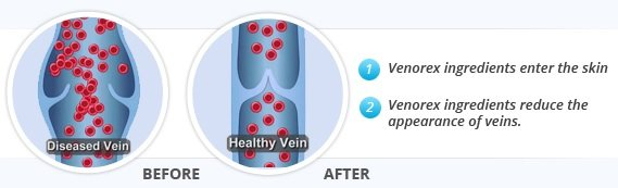 Vericose Vein Graphic