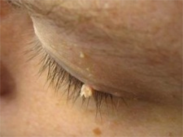 Eye Skin Tag Removal & other general health issues