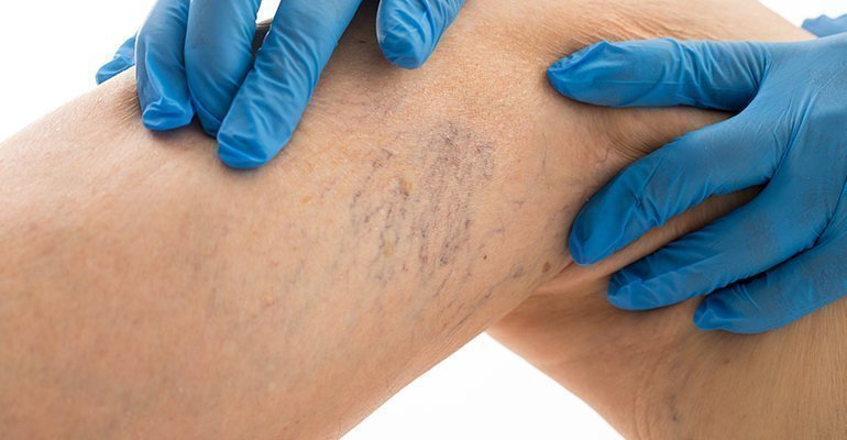 Spider veins treatment with Venorex