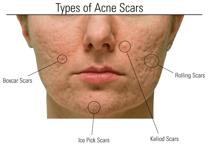 Removing all types of Acne Scars