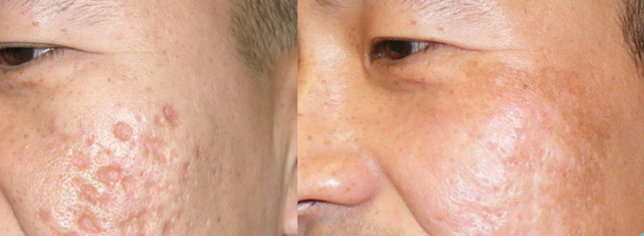 Removing Acne Scars With Revitol Scar Cream Revitol Creams