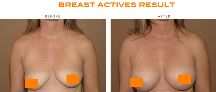 Breast Active Before & After Pic